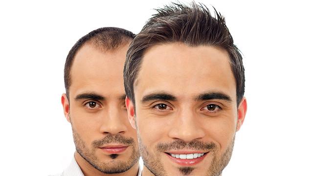 Saç ekimi operasyonu hastane ortamında yapılmalı