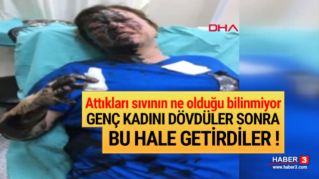 Adana'da korkunç olay ! Tanınmaz hale geldi