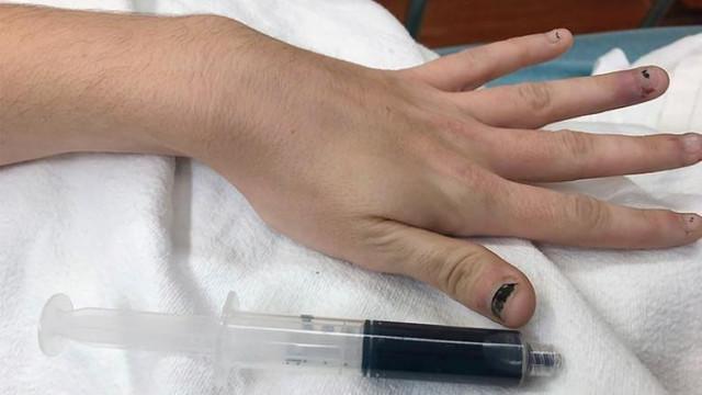 Doktorlar da şaşırdı ! Genç kadının kanı maviye döndü