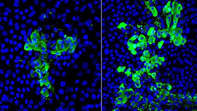 Koronavirüste dikkat çeken araştırma: 3 kat daha fazla etkiliyor