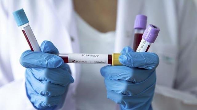 Avrupa Birliği: ''Koronavirüs benzersiz küresel bir kriz''