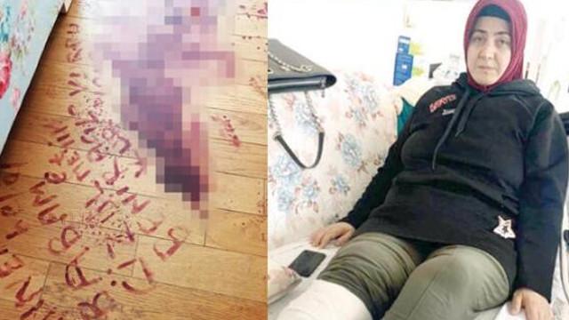 Öleceğini düşünüp saldırganın ismini kendi kanıyla yazan kadın konuştu