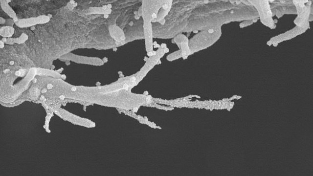 Koronavirüs ilk kez böyle görüntülendi: Sanılandan daha sinsi