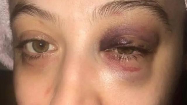 Genç kadına kabusu yaşatan cani yakalandı