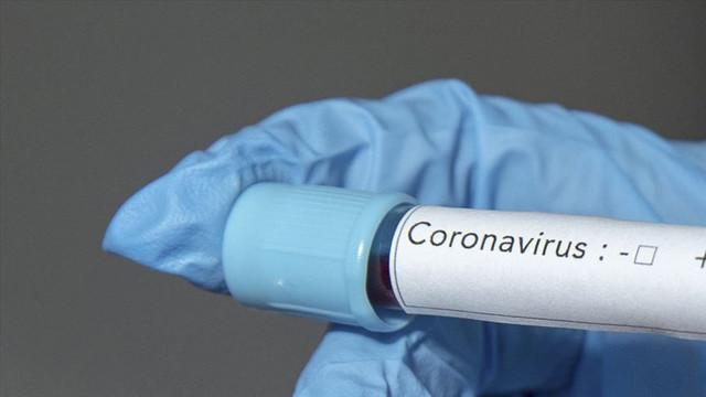 Şoke eden iddia! Virüs, 3 milyon 400 bin kişiye mi bulaştı?