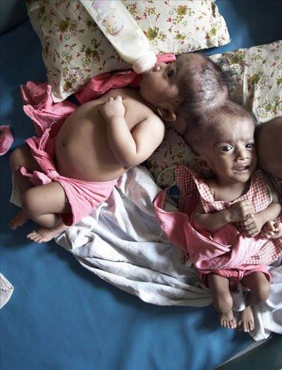 Siyam ikizleri başarıyla ayrıldı
