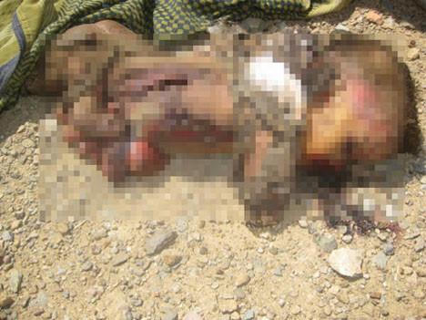 Yemendeki katliam görüntüleri