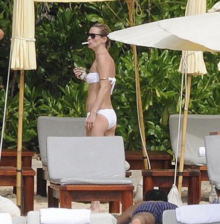 Kate Mossun vücuduna ne oldu?