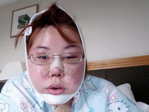 10 ameliyattan sonra