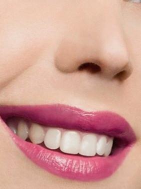 Diş sağlığı hakkında doğru bildiğimiz 30 yanlış