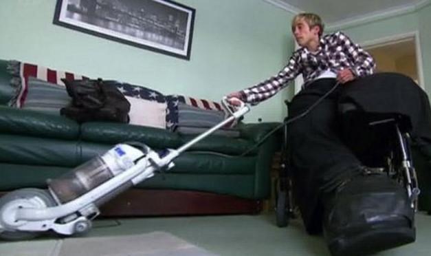 Bu kadının tek bacağı 107 kilo!
