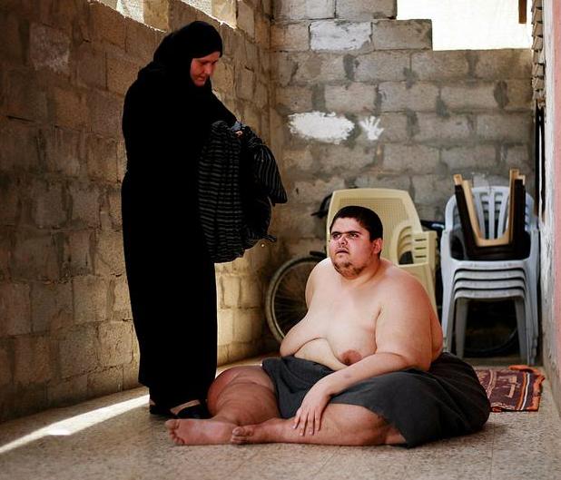 400 kilo olan genç yardım bekliyor