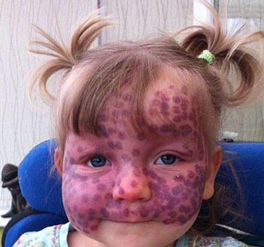 Bu küçük kızın ilginç bir hastalığı var