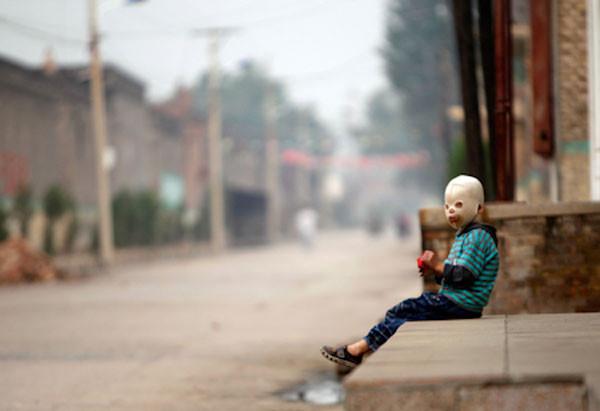 Maskeli Çocukun yalnızlığı