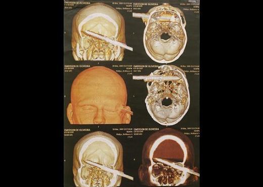 Dünyanın en garip tıbbi görüntüleri