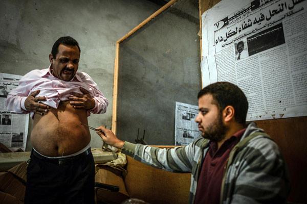 Mısırda bal arısıyla acı dolu tedavi