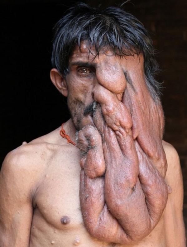 Hindistan'ın Fil Adamı Chana Lal