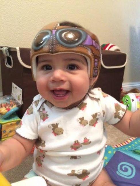 Bu bebeklerin kask takma sebepleri başka