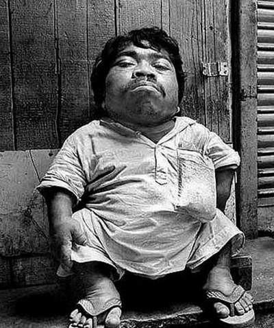 Dünyanın en küçük insanı