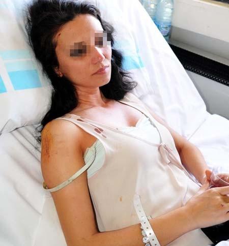 Hostesi sevgilisinin hastanelik ettirdiği iddiası