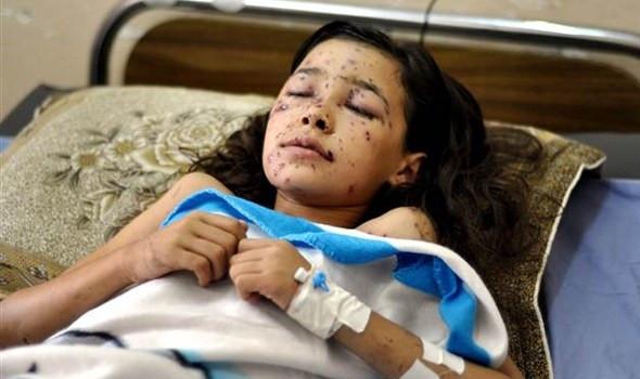 İsrail saldırısından sonra gözlerini açamadı