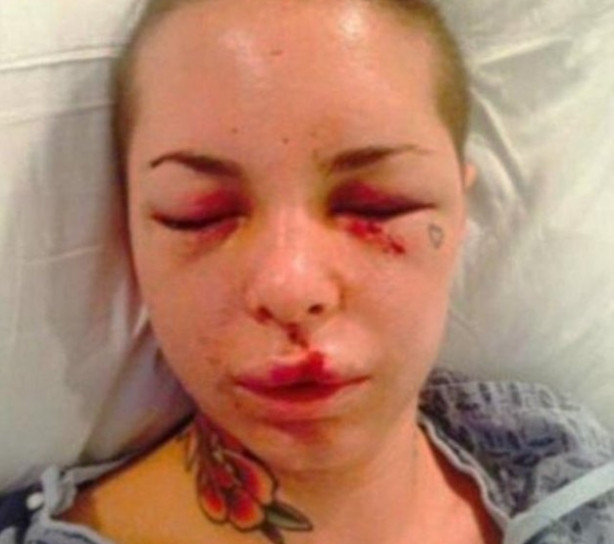 Christy Mack'i eski sevgilisi hastanelik etti