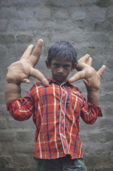 Talihsiz Kaleem'in dev elleri