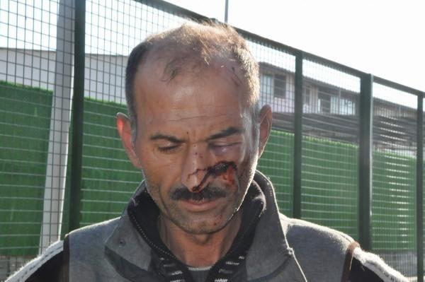 Hesaba itiraz edince öldüresiye dövüldü