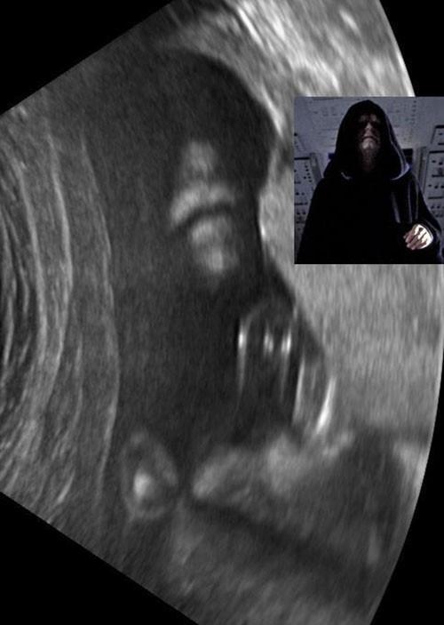 Ultrasonda bebek görmeyi beklerken...