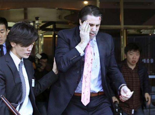 ABD'nin Seul Büyükelçisi Mark Lippert'a usturalı saldırı