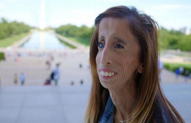 ''Dünyanın en çirkin kadını'' belgeselini yaptı