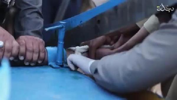 IŞİD, hırsızlıkla suçladığı gencin elini kağıt giyotiniyle kesti