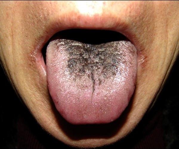 Diliniz sağlığınız hakkında ne söylüyor