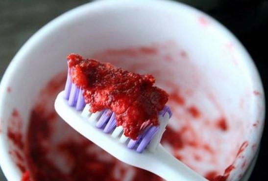 Diş beyazlatmanın en kolay yolları