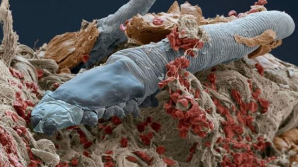 Yüzümüzde yaşayan kurtçuklar