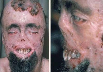 Dünyanın en korkunç hastalıkları