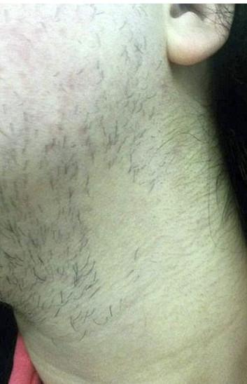 Bu kadın günde 3 kez tıraş oluyor!