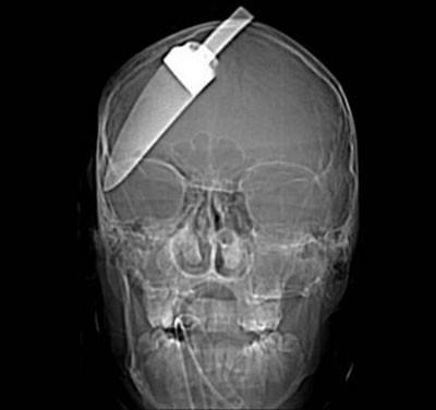 Kafasına saplanmış bıçakla hayatta