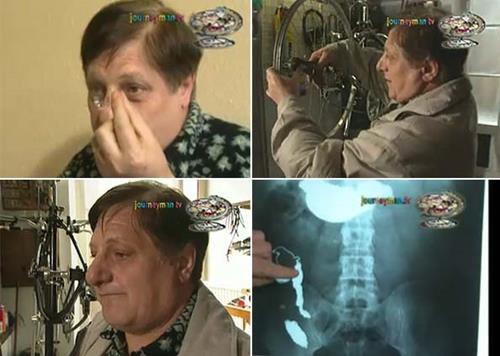 Ne bulursa yiyen adam Michel Lotito'nun tuhaf hikayesi