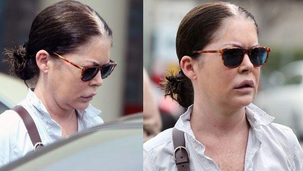 Lara Flynn Boyle'un yüzü tanınmaz hale geldi