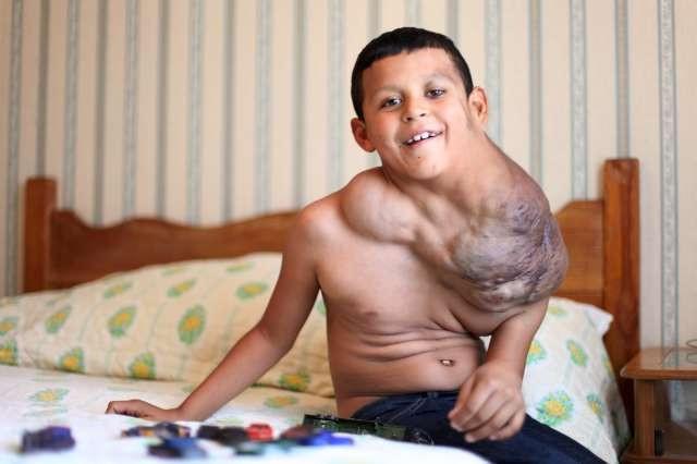 Dev tümörlü çocuğu kurtarma operasyonu
