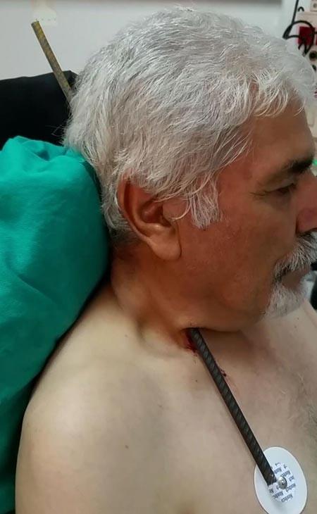 Boynuna inşaat demiri saplanan Akkuş'un 'mucize' kurtuluşu