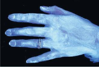 Mikrop kapmak istemiyorsanız ellerinizi böyle yıkayın