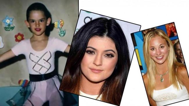 Çocuk yaşta estetik operasyon geçiren ünlüler
