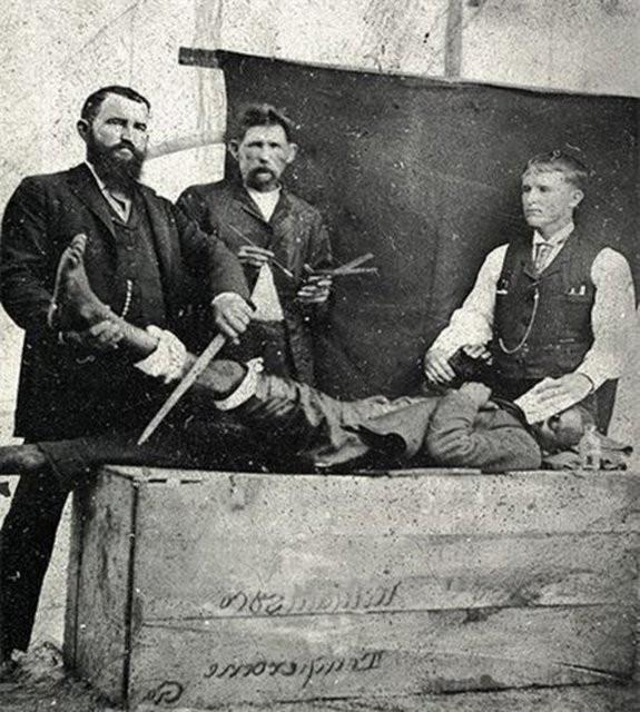 Tarih öncesi tıbbi tedaviler kan donduruyor