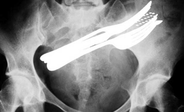 Yok artık diyeceğiniz röntgenler