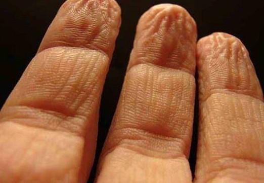 Parmaklar suda neden buruşuyor?