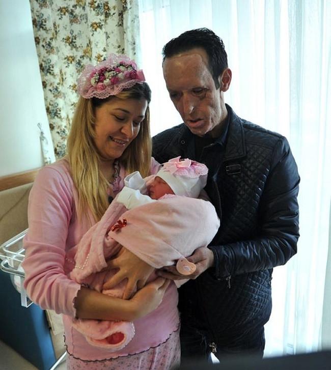 Yüz nakli yapılan Recep Sert baba oldu