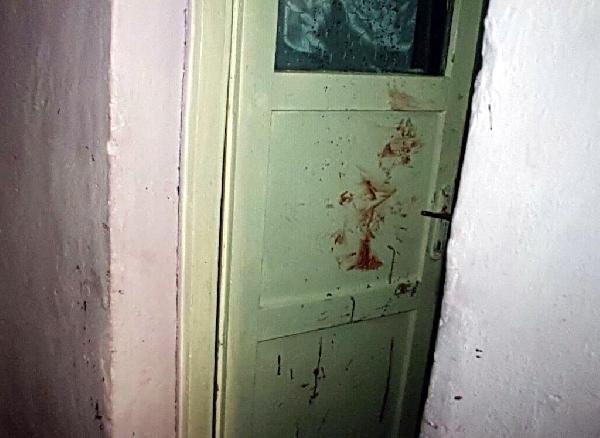 Burcu'nun kanı hala tavanda