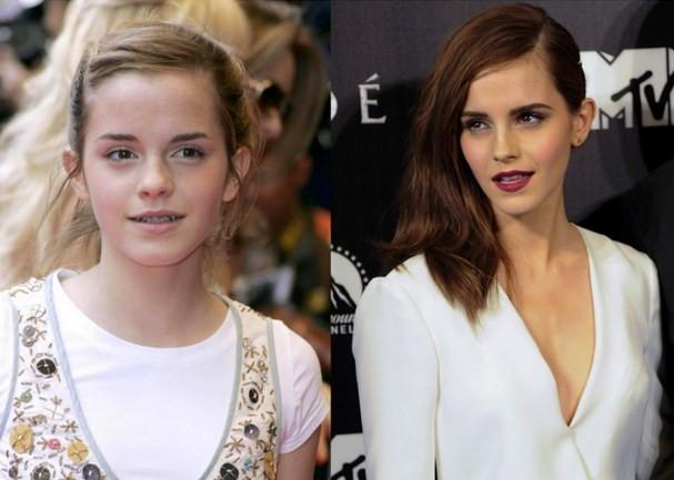 Hollywood'un En Başarılı Çocuk Yıldızları bakın şimdi nasıl!